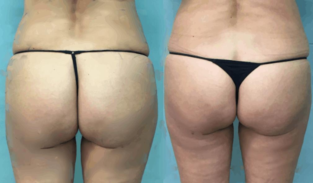 Aqualix antes y despues de adelgazar