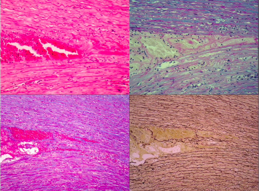 Microscopia electrónica - cambios en las fibras de colágeno con la edad