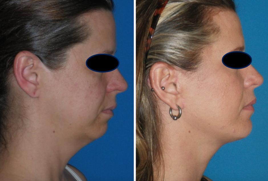 Aqualix antes y después Facial