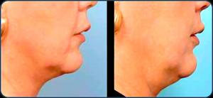 antes y después cuello21