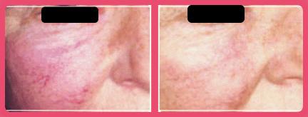 Enrojecimiento Facial Cuperosis - Rosacea 1