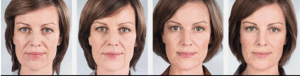Sculptra antes y despues clinica Vicario 2
