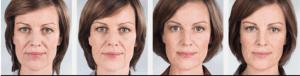 Sculptra antes y despues clinica Vicario 2
