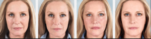 sculptra antes y despues clinica vicario 1