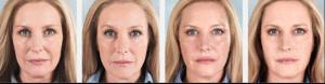 sculptra antes y despues clinica vicario 1