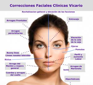 Correcciones Faciales
