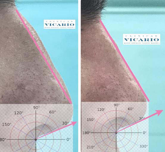 Rinomodelación la Rinoplastia sin cirugía 25