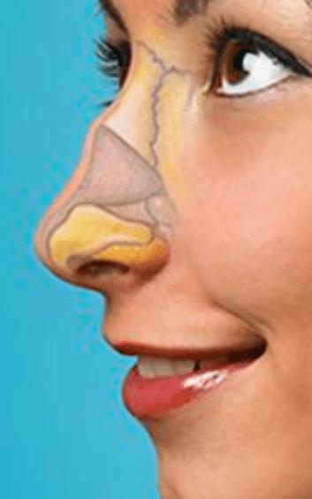 Rinomodelación la Rinoplastia sin cirugía 21