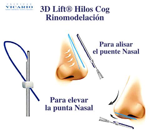 Rinomodelación la Rinoplastia sin cirugía 11
