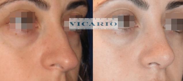 Rinomodelación la Rinoplastia sin cirugía 8
