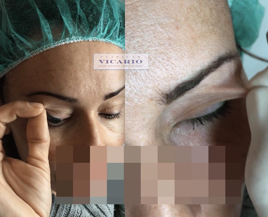 Blefaroplastia sin Cirugía 4