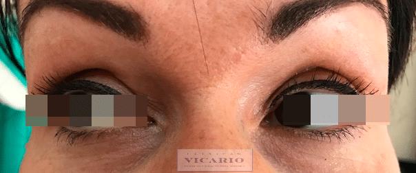 Blefaroplastia sin Cirugía 7