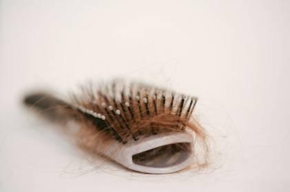 cómo detener la alopecia