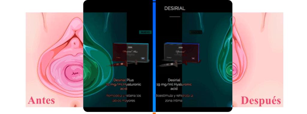 Desirial ® Rejuvenecimiento intimo 2