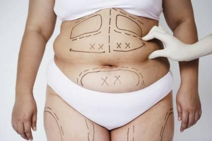 aqualix la intraloterapia que destruye grasa localizada
