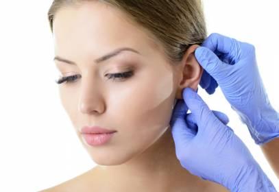 la otoplastia sin cirugía