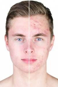 Enrojecimiento Facial Cuperosis - Rosacea 2