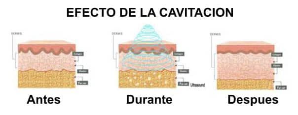 Cavitación 3