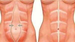 consejos para eliminar la barriga