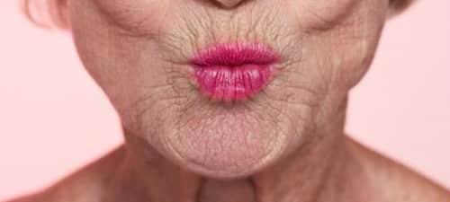 arrugas nasogenianas, cómo tratarlas?