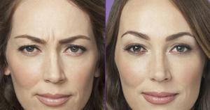 Arrugas del Entrecejo, Cómo puedo Eliminarlas? 3