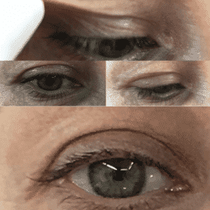 Blefaroplastia sin Cirugía 3