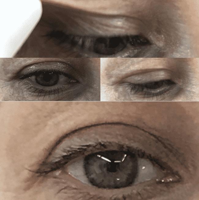 blefaroplastia sin cirugía – plasma lÁser