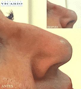 Rinomodelación la Rinoplastia sin cirugía 2