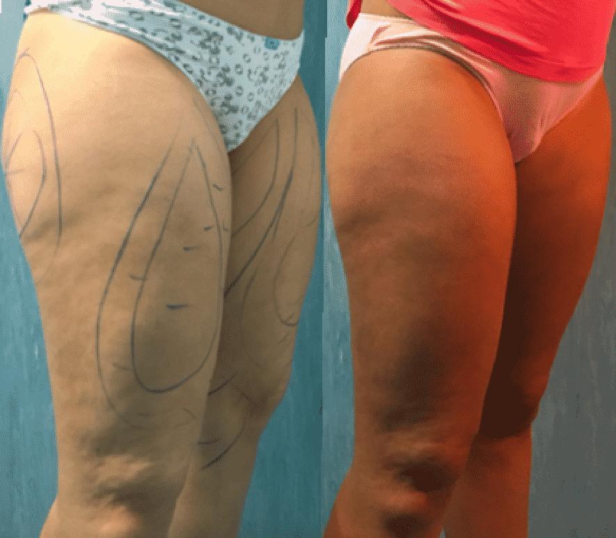 antes y despues derecha muslos