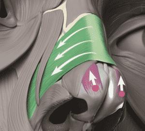 Rinomodelación la Rinoplastia sin cirugía 5