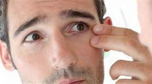Arrugas de Expresión o en los ojos como Elimiarlas?