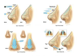 Rinomodelación la Rinoplastia sin cirugía