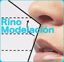 rinomodelacion-hilos-tensores-px