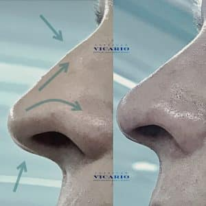 Rinomodelación la Rinoplastia sin cirugía 3
